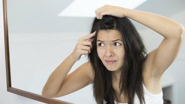 خلطات طبيعية لعلاج شيب الشعر المبكر